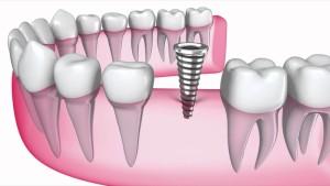 стоматология цены в Астане