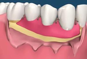 zubki2