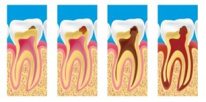 caries-1