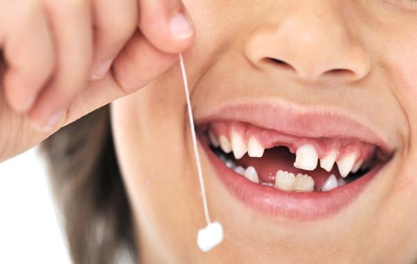 Простое удаление зубов