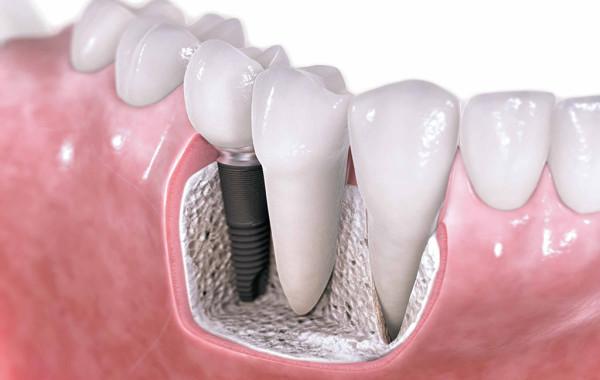 Имплантация зубов в Астане