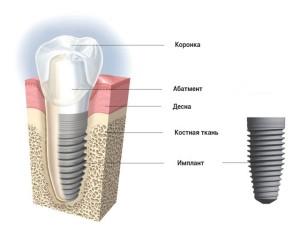struktura-implanta