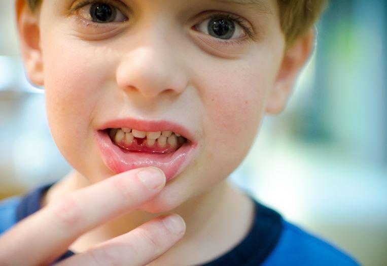 Зубки-зубы